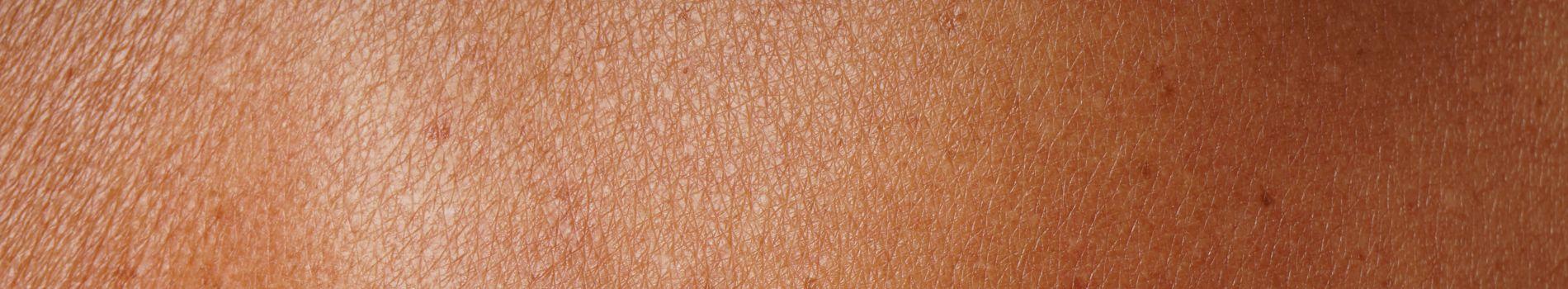 Trans-dermal,  Iodine through the skin?