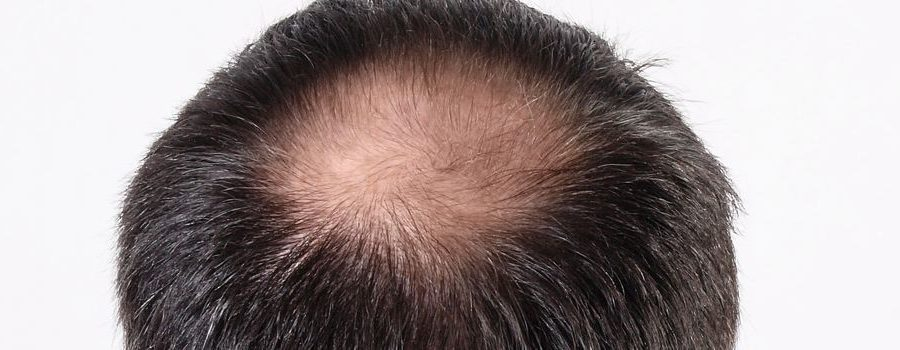 Does iodine affect hair loss